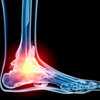 Ankle Sprains: Causes, Consequences and Cures