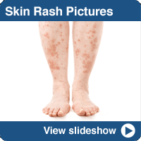 Pictures of Common Skin Rashes