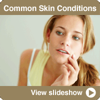 Common Skin Diseases and Conditions