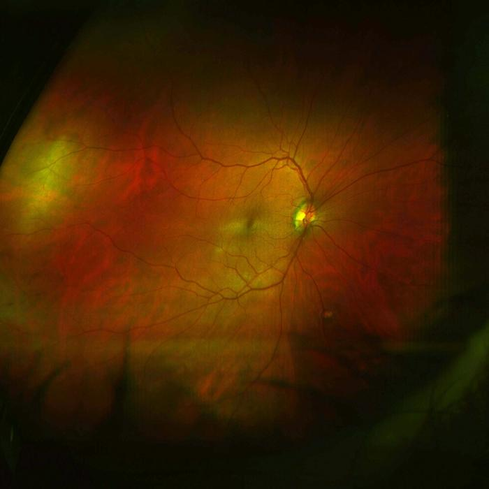 Image of right retina