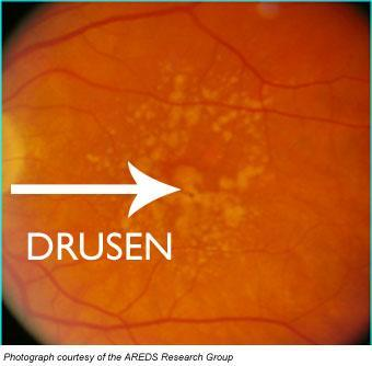 soft macular drusen are one type of dry macular degeneration