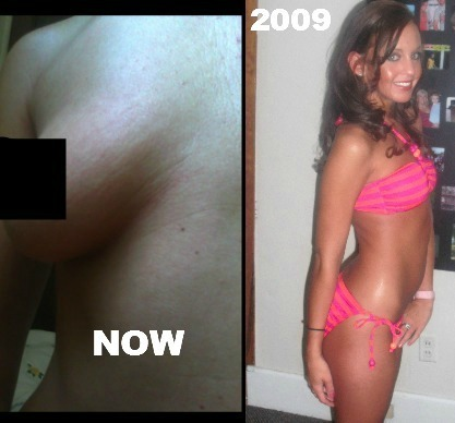 On the right before I got bit u can seen my skin is tight, firm in '09. Now its like the left, AGED
