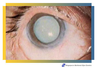 "So called ""Ripe"" or ""Bag of Milk"" cataract"