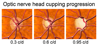 "Glaucoma causes progressive damage to the optic nerve called ""cupping"""