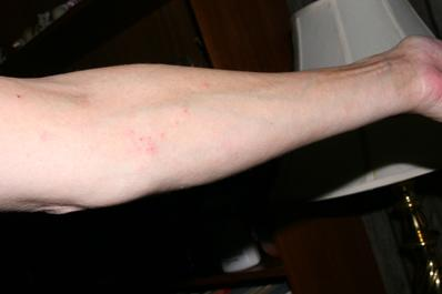 rash on arm